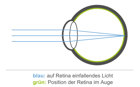 Position der Retina im Auge