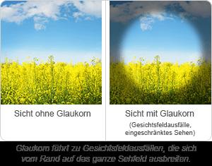 Sicht mit Glaukom