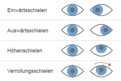 Verschiedene Formen des Schielens