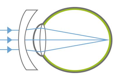 Myopie - Auge mit Korrekturglas